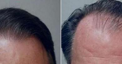 دراسة: زراعة الشعر تجعل الرجال يبدون أكثر جاذبية وأصغر سنا