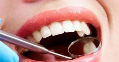 اختراع بريطاني.. حشو للأسنان يدوم طول العمر
