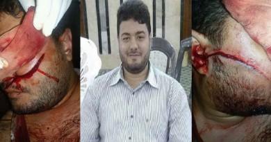 الوفد : ضبط الجناة في حادث تشويه أحد شباب حزب الوفد
