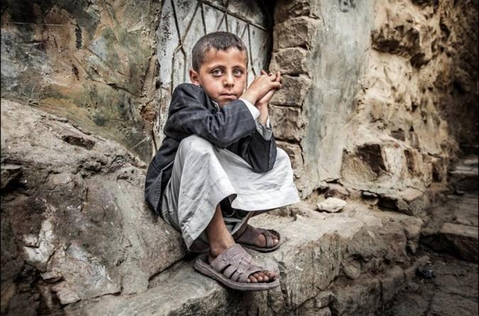 """""""يونيسيف"""": مليونا طفل في اليمن يعانون من نقص حاد في التغذية"""