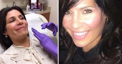 """تجري 8 عمليات جراحية من أجل """"ميلانيا ترامب"""""""