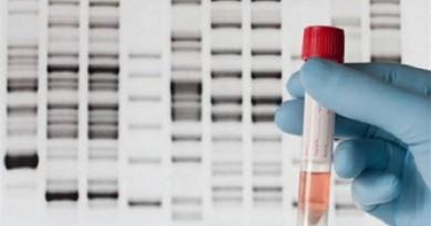 لا تحاول معرفة من أين جاء أجدادك.. مرض خطير قد يواجهك إذا أجريت اختبار الحمض النووي DNA