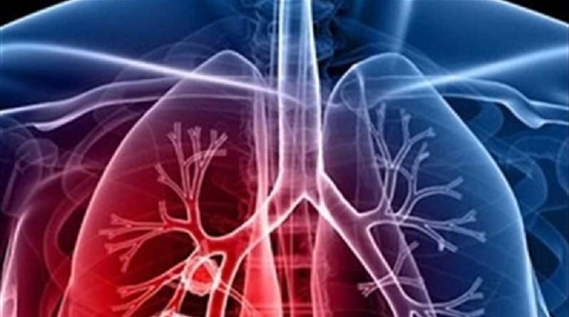 المكملات الغذائية ترفع مخاطر الإصابة بسرطان الرئة