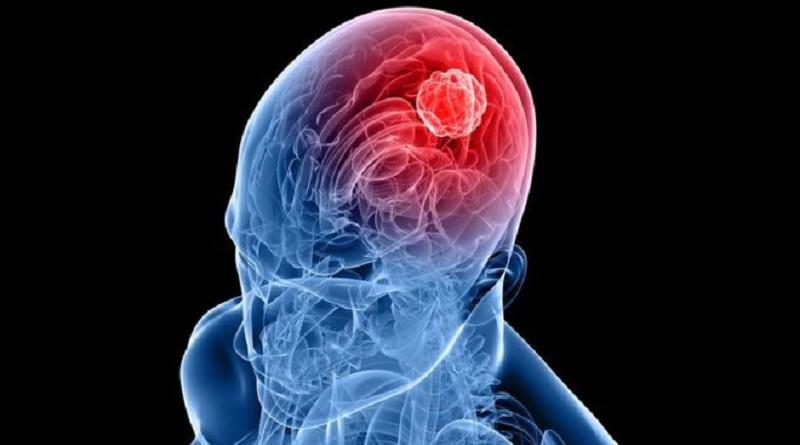 التغيير الإيجابي الذي تجلبه إصابات الدماغ