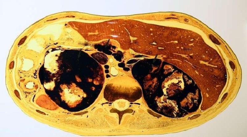 اكتشاف عضو جديد في جسم الإنسان