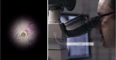 بالفيديو... مسبار جوجل يكشف السرطان مباشرة!