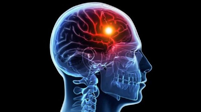 جلطات المخ