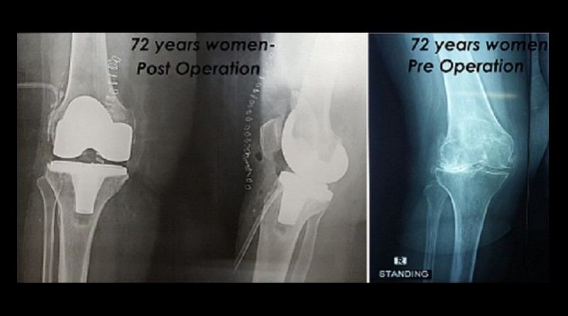Elderly Man and Woman Combat Osteoarthritis through a Surgical Procedure