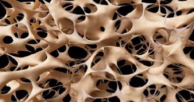 باستخدام أشعة سينية ...اكتشاف أقدم نوع من العظام في السجل الأحفوري