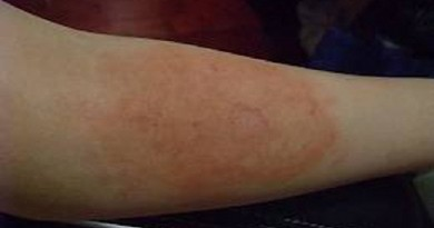 First-Degree Laser Burns Can Take Around a Year or Two to Heal