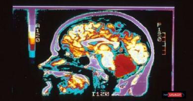 علماء يحددون أوجه الاختلاف بين دماغ الرجل والمرأة