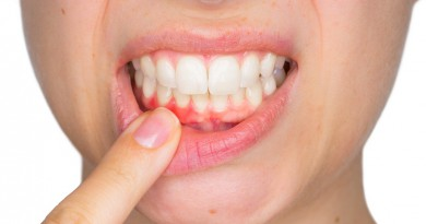 Closeup portrait of young woman showing with his finger inflamed lower gingiva with pain expression. Dental care and toothache.
