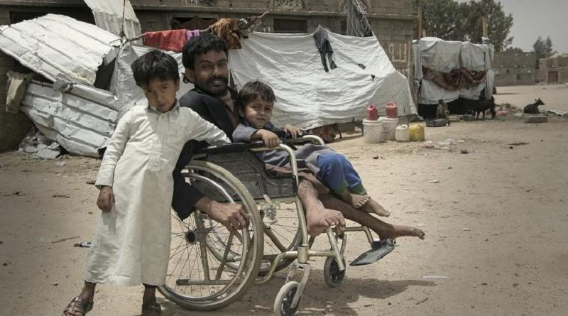 تستمر الحرب الضروس على الأطفال في اليمن بلا هوادةتستمر الحرب الضروس على الأطفال في اليمن بلا هوادة
