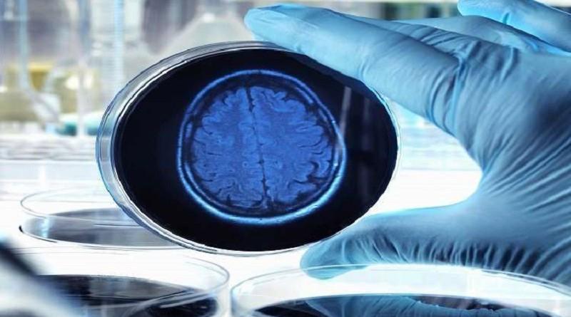 جزء في الدماغ قد يكون مفتاح القضاء على ألزهايمر