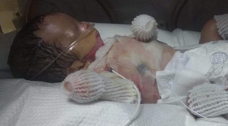 حالة نادرة.. ولادة طفل بدون جلد (صور)