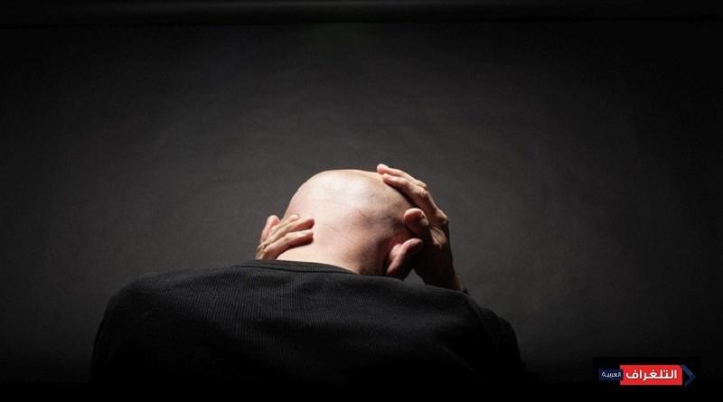 """علاج رائد للصلع """"ينهي"""" مأساة الرجال"""