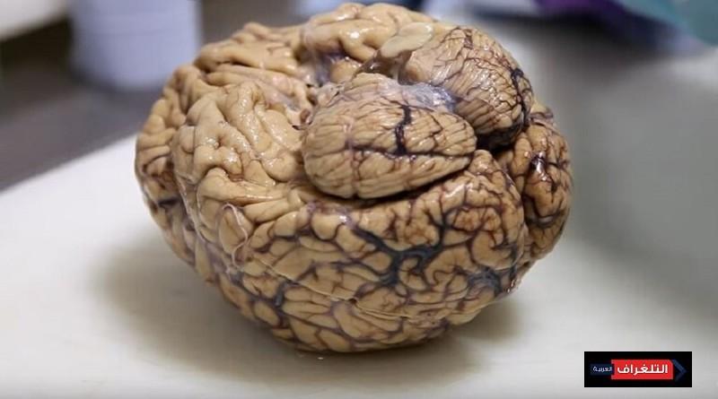 دماغ غامض في جمجمة مقتول