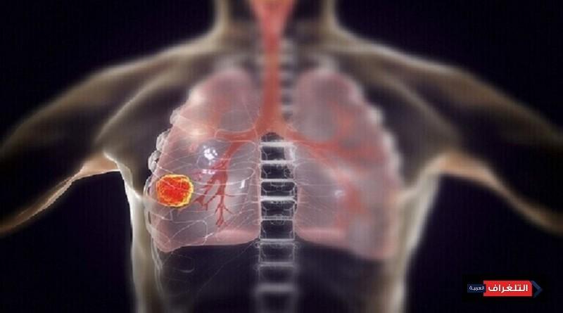 عضو أساسي يتلفه فيروس كورونا بعد مهاجمة الرئتين