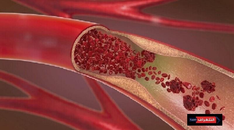 دعامات الأوعية الدموية